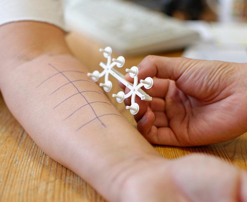Kinderallergologie